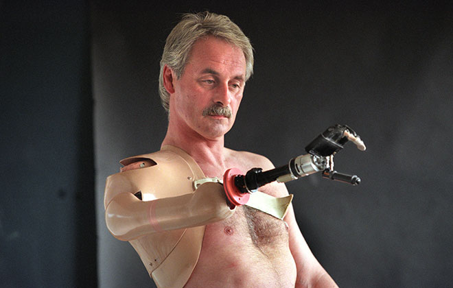 First bionic arm fitted on an individual (male)
